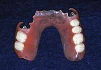 バネの見えないフレキシブル義歯
