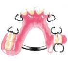 バネが見える入れ歯