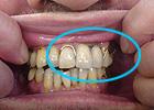 バネが見える部分入れ歯