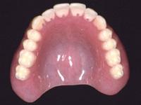 レジン<プラステック>床義歯