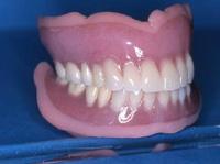 ソフト義歯